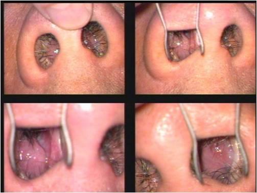 trattamento naso chiuso
