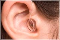 protesi auricolare 4