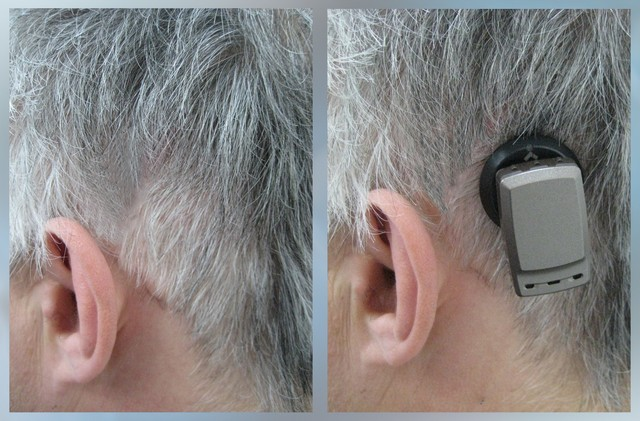 protesi acustiche impiantabili