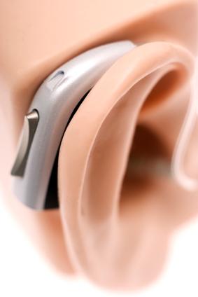 protesi auricolare