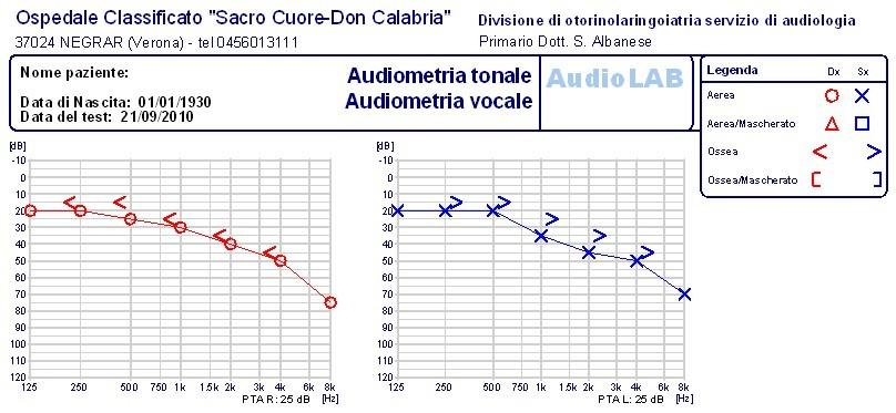 presbiacusia audiometria